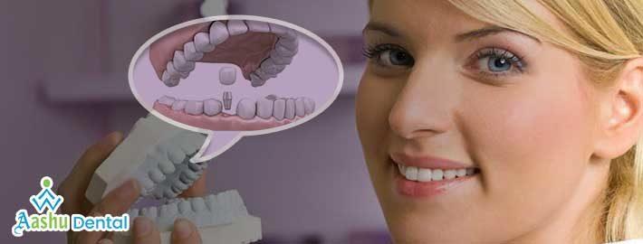 Dental-implant-center.jpg