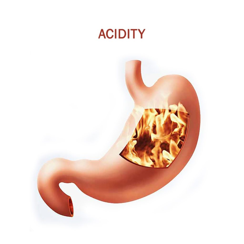 Acidity Treatment Vgm Gastro Centre In Coimbatore - vgmgastrocentre.com - Copy - Copy - Copy.jpeg
